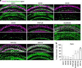 Novel AAV Vector May Lead to Improved Cochlear Therapy